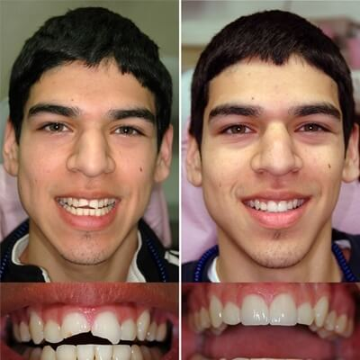 Photograph of a young man with two broken front teeth before and after dental reconstruction