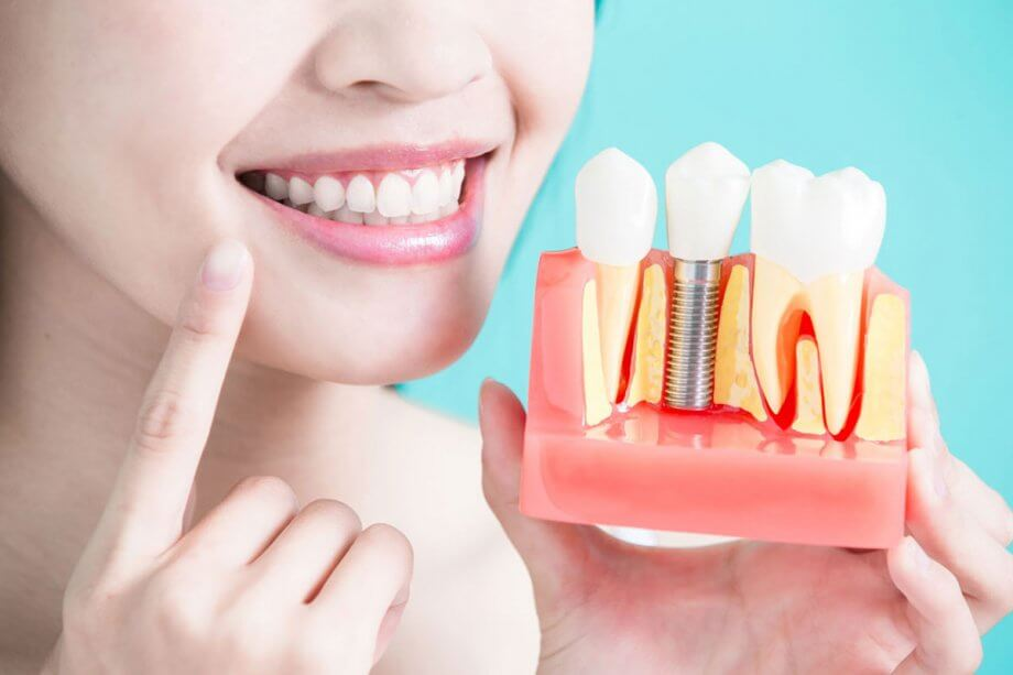 Dental Implant Alternatives: Know Your Options